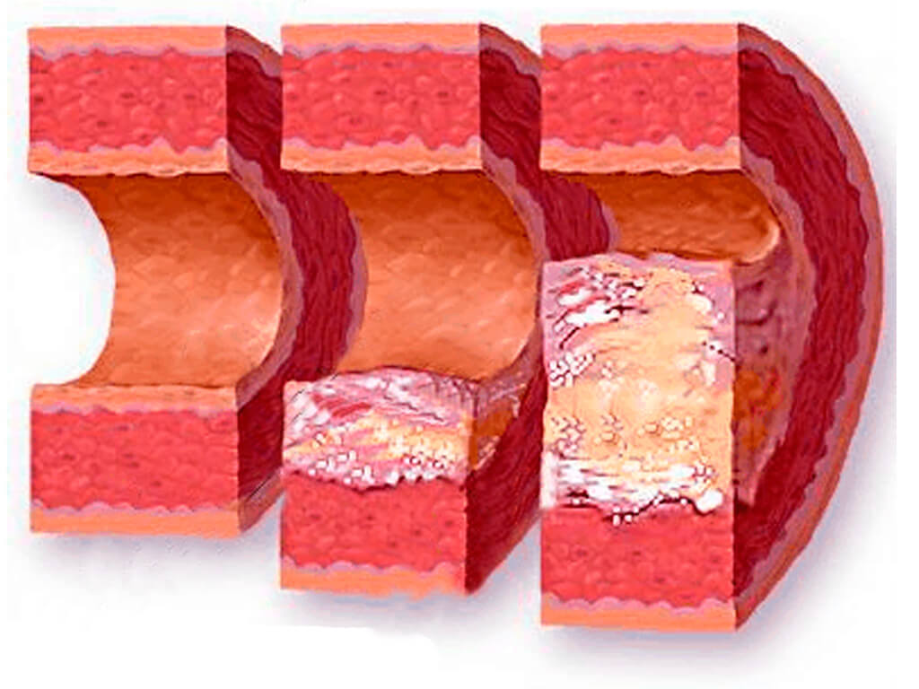 Этапы развития атеросклероза