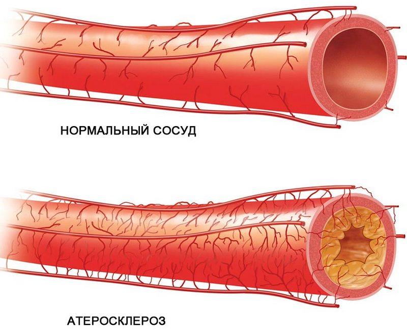 Признаки атеросклероза сосудов