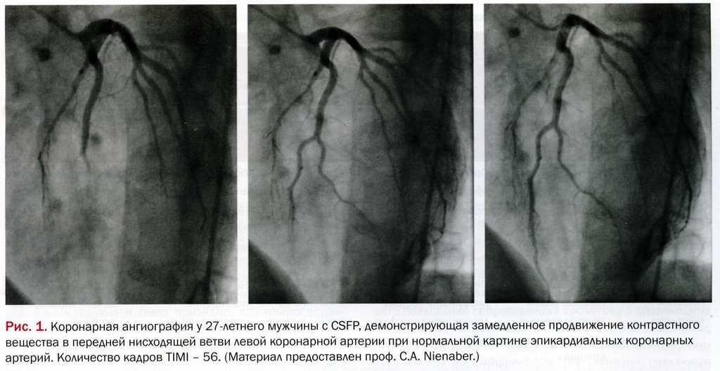 Коронарная ангиография у 27 летнего мужчины с кардиальным синдромом