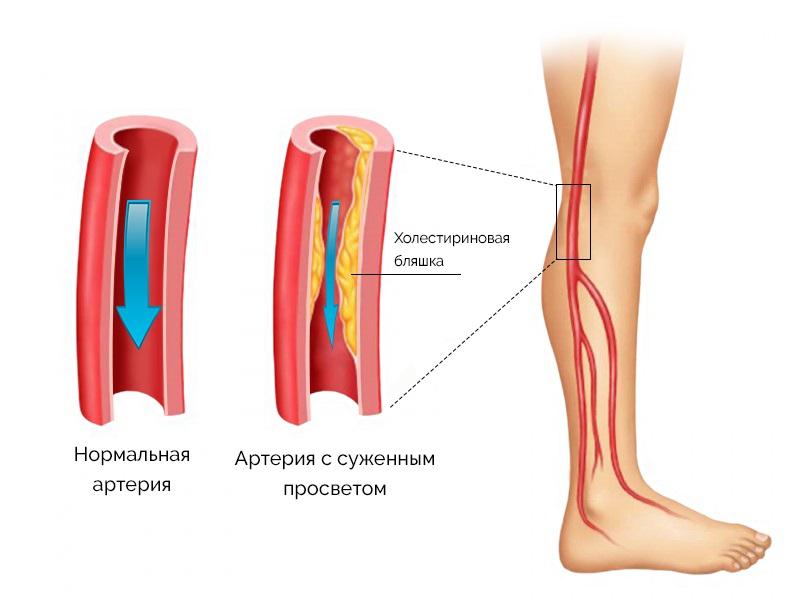 Симптомы атеросклероза сосудов ног