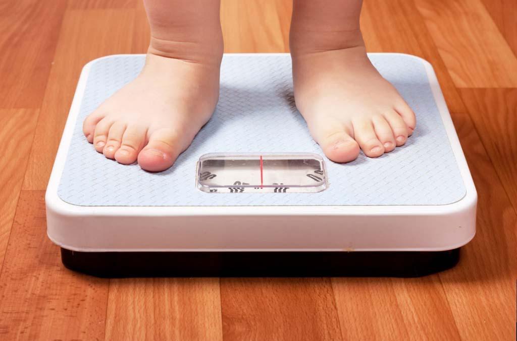 Ожирение - одна из причин развития атеросклероза