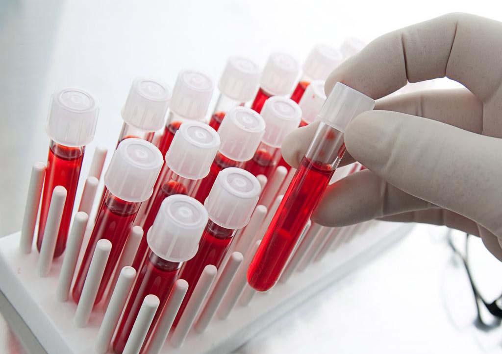 Выявить атеросклероз можна с помощью анализа крови