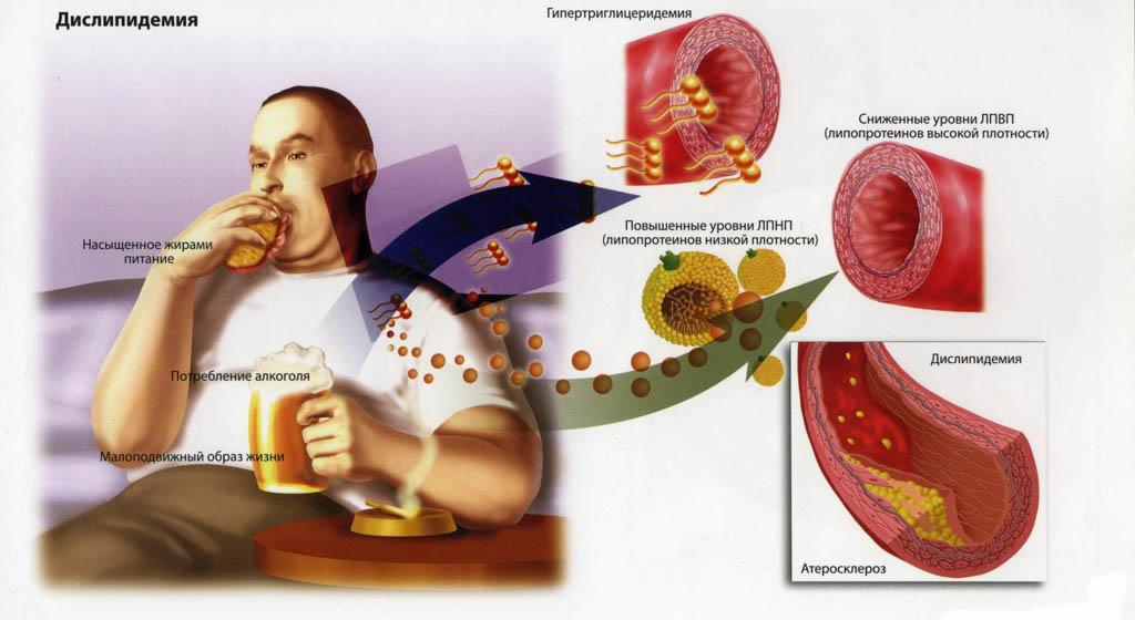 Неправильное питание - одна из причин появления атеросклероза