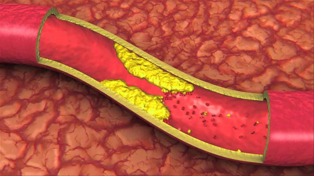 Что такое атеросклероз сосудов нижних конечностей?