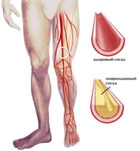 ateroskleroza-nizhnix-konechnostej-v-domashnix-usloviyax
