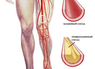 Лечение варикоза солью отзывы Здоровье и медицина