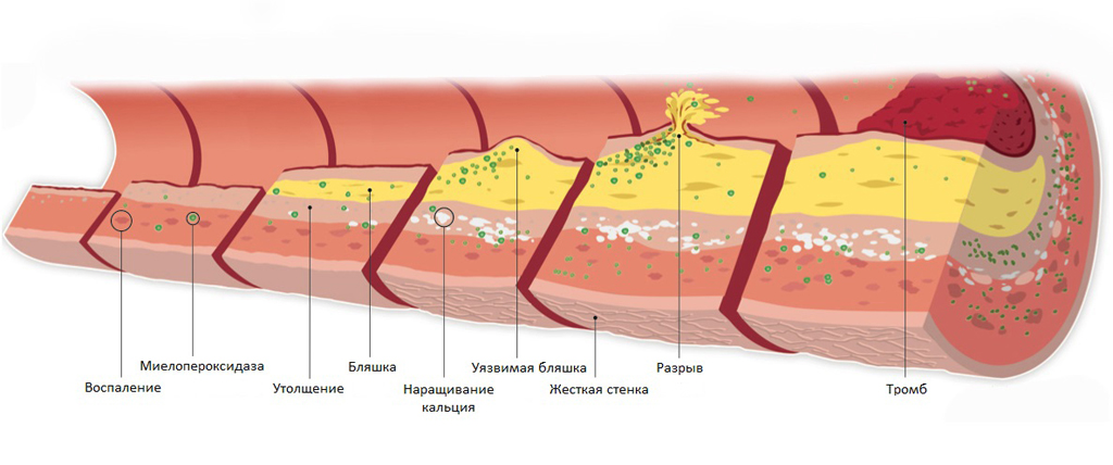 Атеросклероз - заболевание вен