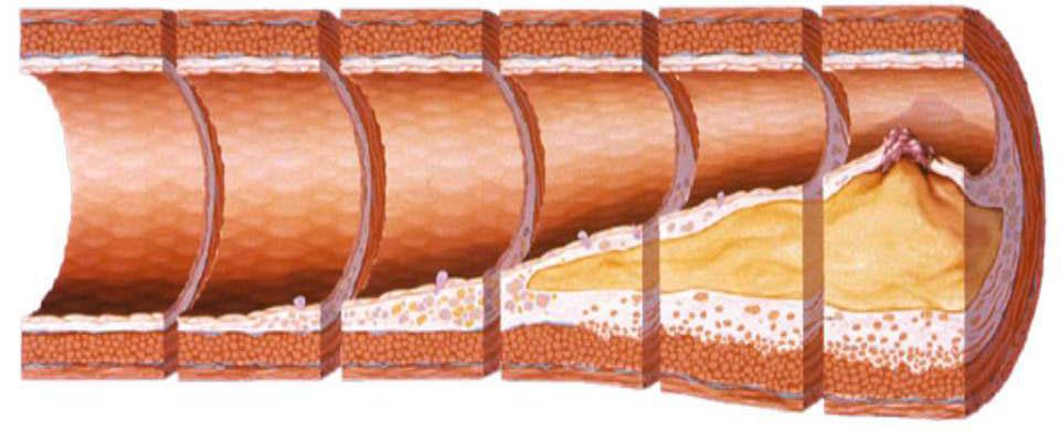 Атеросклероз - многолетнее развитие