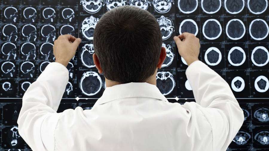 Церебральный атеросклероз - томография мозга