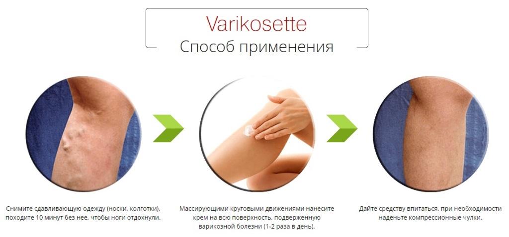 Как применять крем Varikosette?