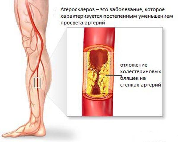 Атеросклероз коронарных артерий имеет множество симптомов, в зависимости от выраженности атеросклероза, проявляясь стенокардией или острой коронарной недостаточностью