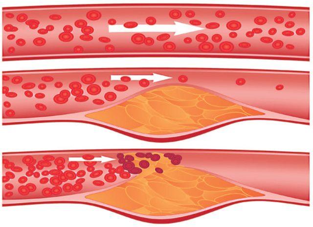 Но с течением времени происходит трансформация атеросклеротической бляшки от стабильной до нестабильной под воздействием системных факторов: физическая нагрузка, эмоциональный стресс, артериальная гипертензия, нарушение сердечного ритма