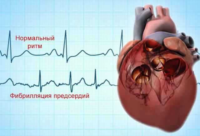 Клинические проявления мерцательной аритмии зависят от частоты сердечных сокращений, определяющей нарушение центральной гемодинамики
