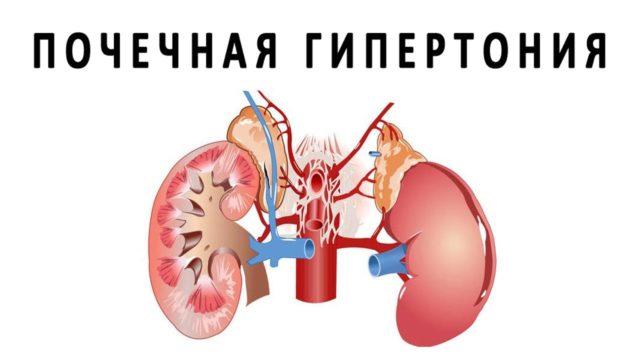 Почечная гипертония обычно протекает по двум направлениям, которые обусловлены аномалиями развития органов или приобретенными патологиями, спровоцировавшими ее развитие