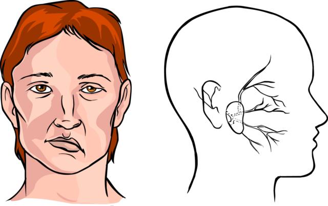 Это головокружение, боли, онемение, нарушение координации, потеря зрения и другие