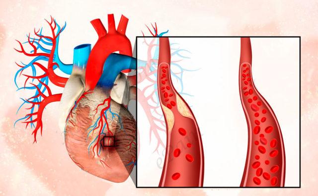 Однако, особенно в первые часы и сутки, возможно развитие таких осложнений, как аритмии (в том числе фибрилляция желудочков)