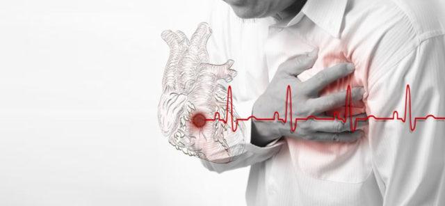 Продолжительность болей обычно меньше, чем при крупноочаговом ИМ