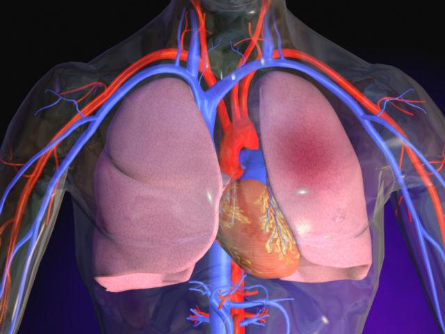 Рефлекторный спазм в системе легочных артерий, как обычно, сопровождает обтурацию сосуда