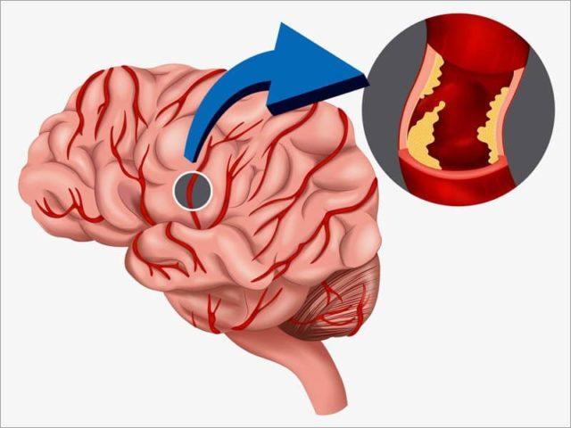 К хронической ишемии мозгового кровообращения могут привести и другие сердечно-сосудистые болезни
