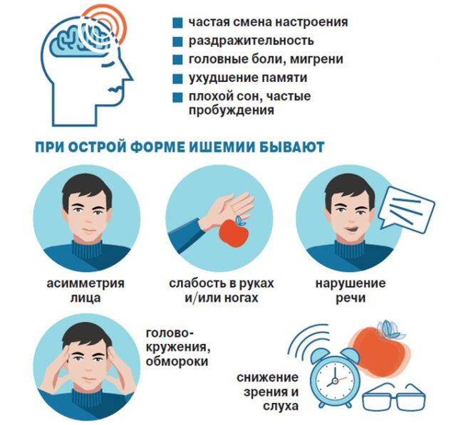 Клинически особенности хронической ишемии головного мозга — прогрессирующее течение, стадийность, синдромальность