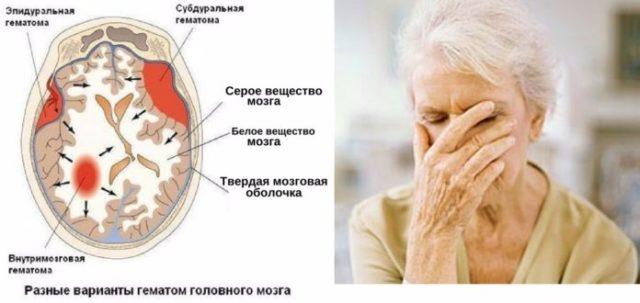Нарушена ходьба и равновесие (частые падения), недержание мочи, паркинсонический синдром
