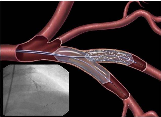 В таких случаях проводят реконструктивные операции на внутренних сонных артериях — каротидная эндартерэктомия, стентирование сонных артерий