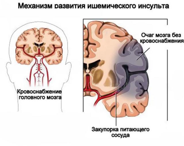 К тромбозу мозговых сосудов приводят нарушения структуры сосудистой стенки – эндотелия, замедление кровотока, повышение свертывающих свойств крови