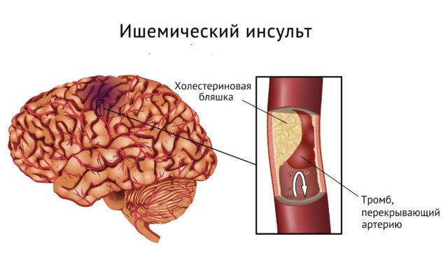 Этот синдром сопутствует таким заболеваниям, как атеросклероз, ИБС, гипертония, болезни сердца, сахарный диабет, заболевания крови