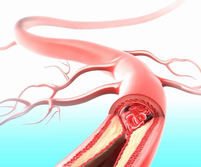 В результате нехватки кислорода для клеток головного мозга происходят сбои, которым свойственно проявление в виде болевых ощущений и прочих видов недомоганий