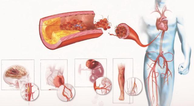 Атеросклеротические изменения способствуют отложению внутри сосудов излишков жира, и постепенно просвет кровеносной трубки сужается