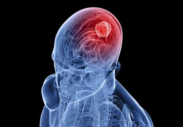 Это серьёзное заболевание, которое преимущественно поражает сосуды головного мозга, закупоривая их и, тем самым, вызывая кислородную недостаточность