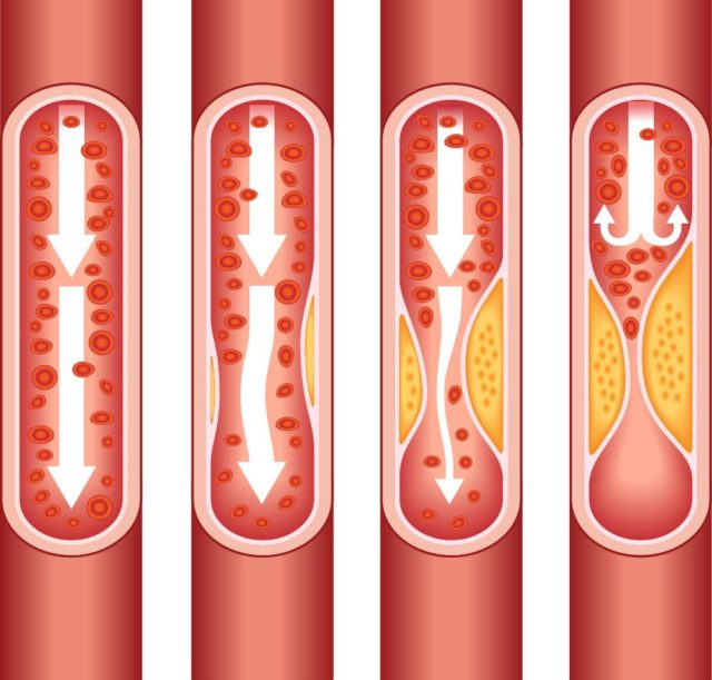Последний возникает из-за острой ишемии коронарных артерий – тех, что питают сердце
