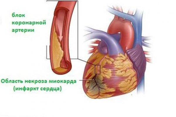 Организм компенсирует повреждение максимально быстрым способом – вырабатывается белок фибрин, который заполняет поврежденный участок
