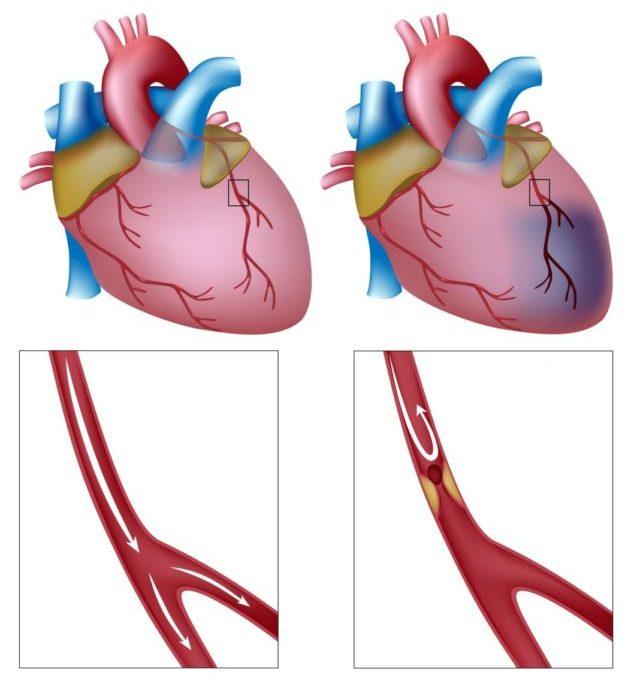 Инфаркт миокарда представляет собой некроз (омертвение) участка сердечной мышцы по причине полного прекращения тока крови по коронарным артериям