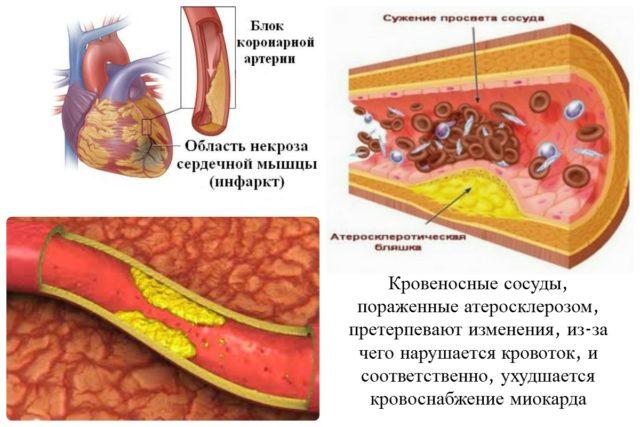 При острых формах ИБС степень сужения достигает двух третей диаметра сосуда и даже больше