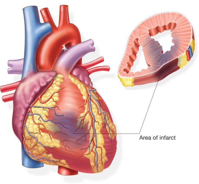Наиболее частое местоположение инфаркта миокарда — стенка левого желудочка, имеющая наибольшую толщину (0,8 – 1 см)