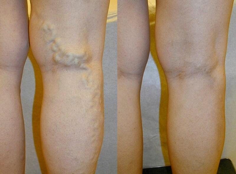 Лечение варикоза на разных стадиях