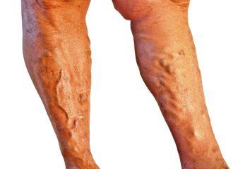 Тромбоз нижних конечностей