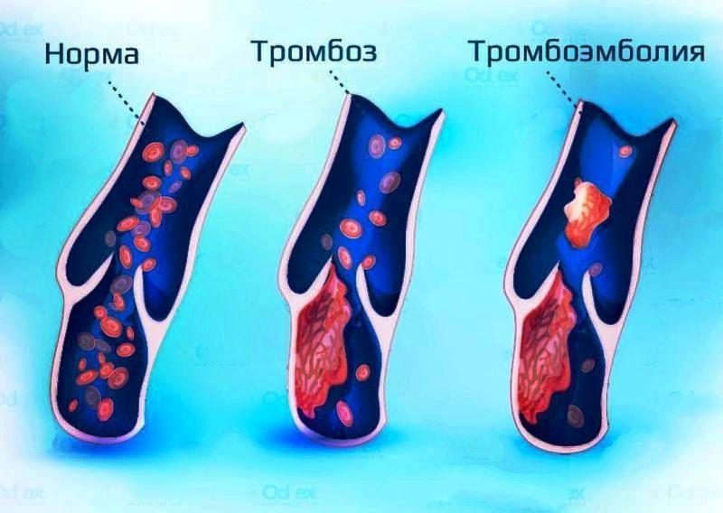 Когда назначается Тромбэмболэктопия