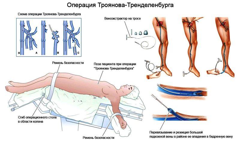 Операция Троянова–Тренделленбурга