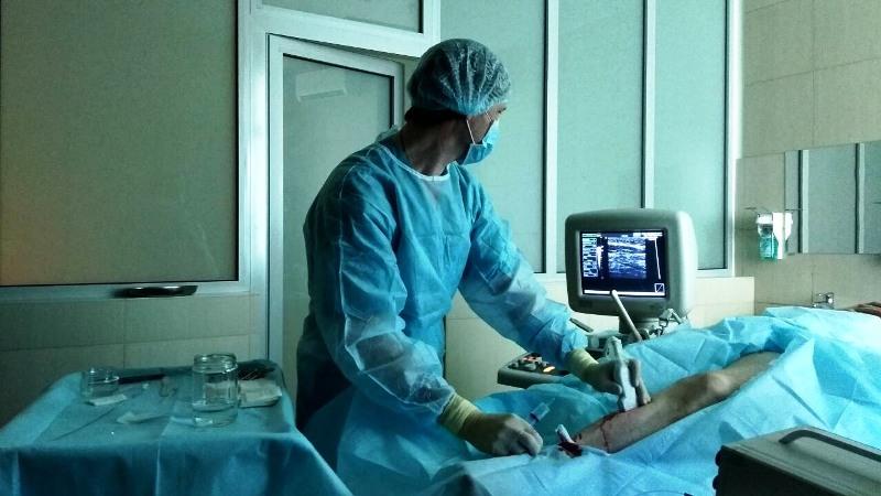 Эндовазальная лазерная облитерация