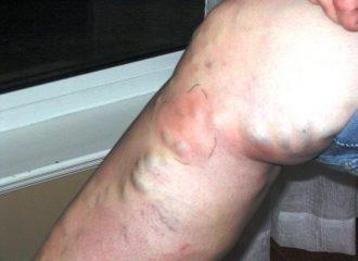 лечение поверхностного тромбофлебита
