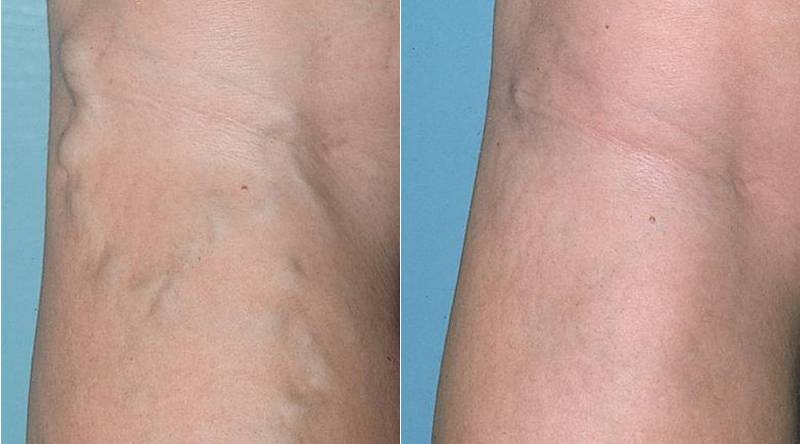Склерозирование: до и после