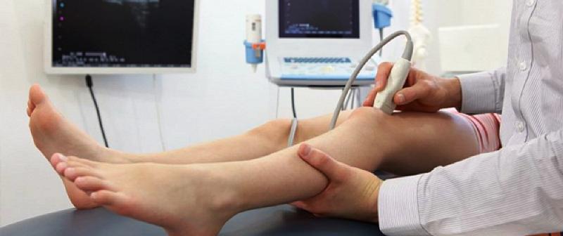Дуплексное сканирование ножных вен