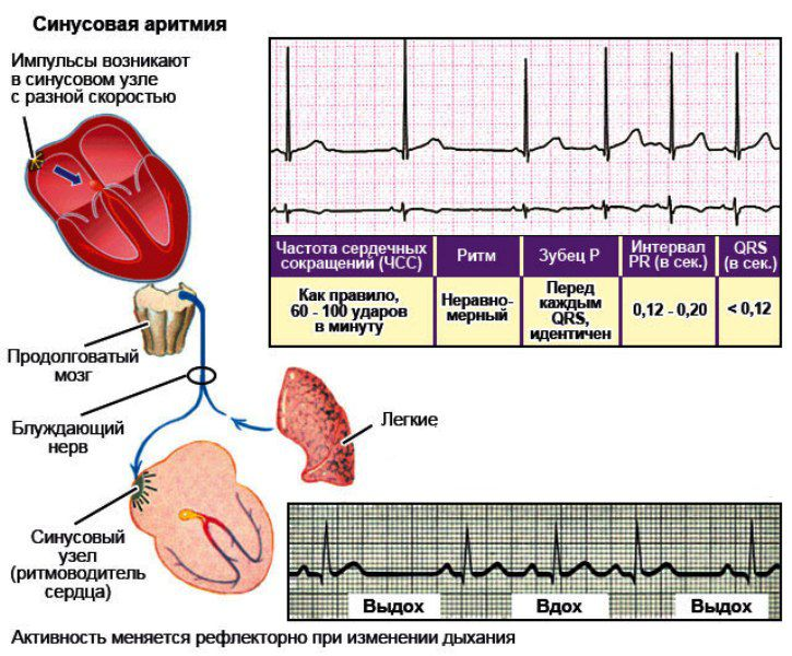 Как проявляется синусовая аритмия