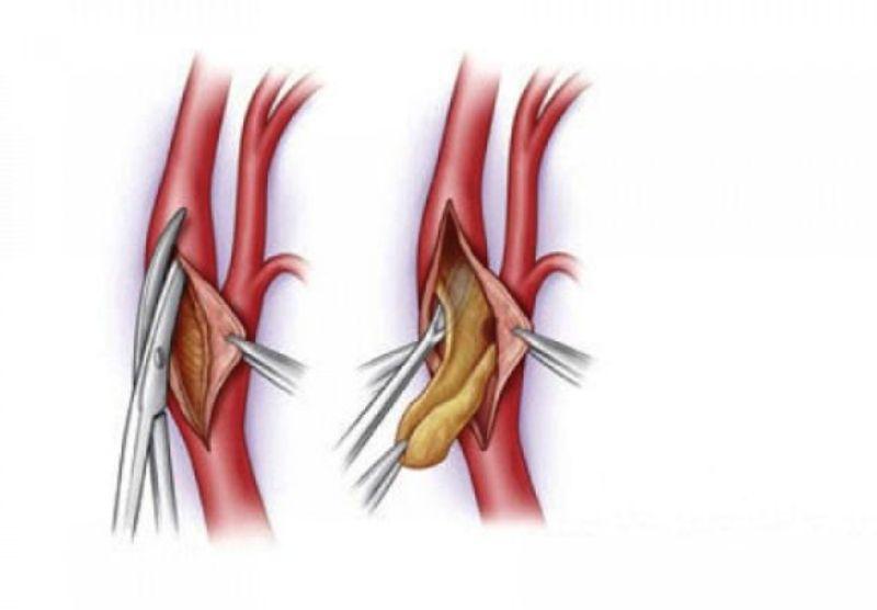 Венозная тромбэктоми