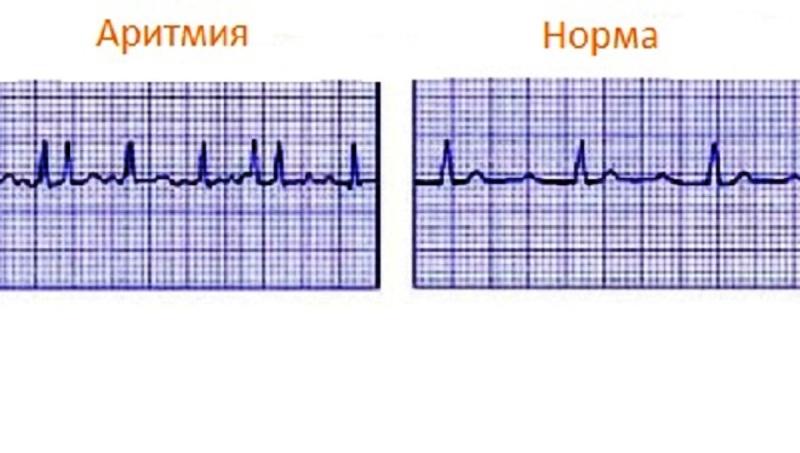 Кардиограмма - аритмия и норма