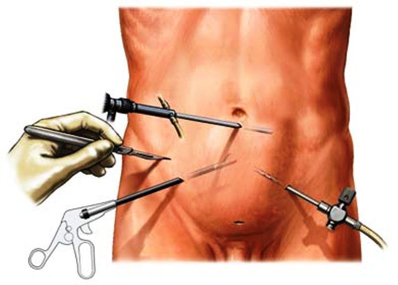 Схема лапароскопии