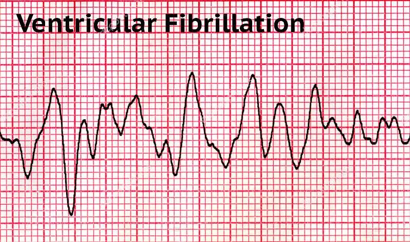ЭКГ фибрилляции