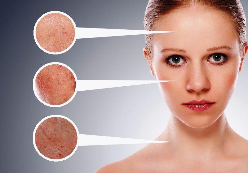 Вид кожи до и после лечения